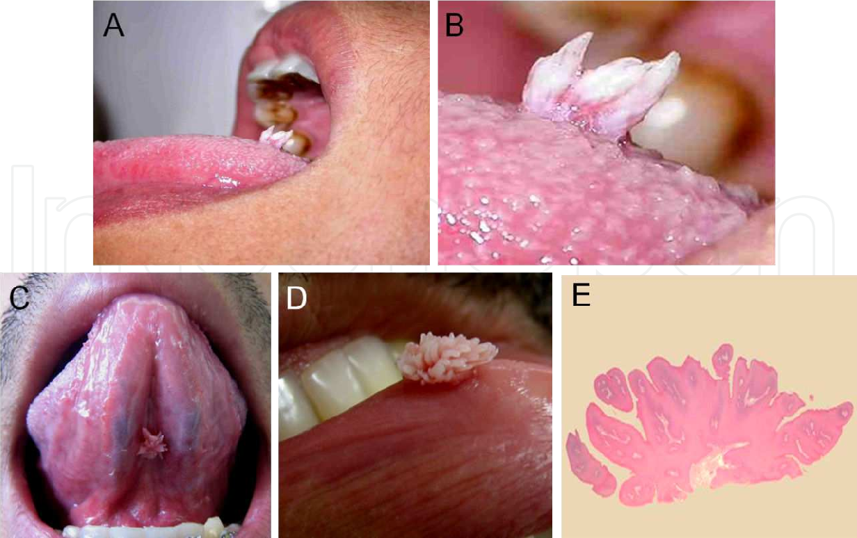 congenital squamous papillomas