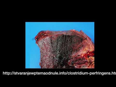 Virus papiloma humano slideshare - info-tecuci.ro