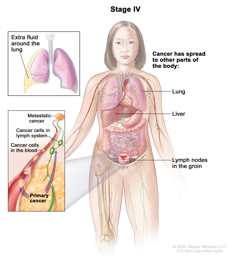 peritoneal cancer tumor markers)