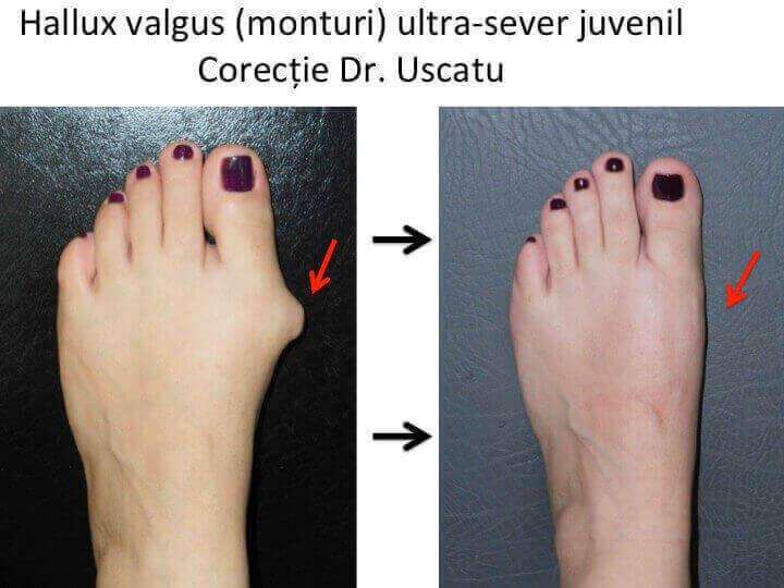 crește între tratamentul degetelor de la picioare