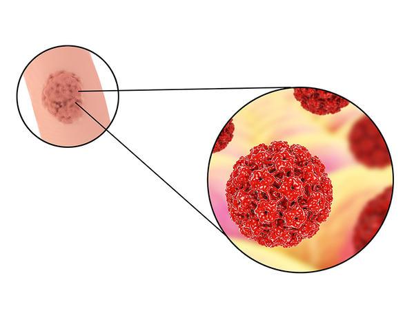 mai multe nemathelminthes din filum dalam ca copii pentru a trata viermii