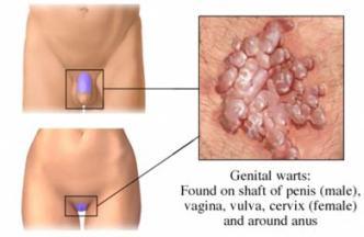 human papillomavirus infection genital warts)
