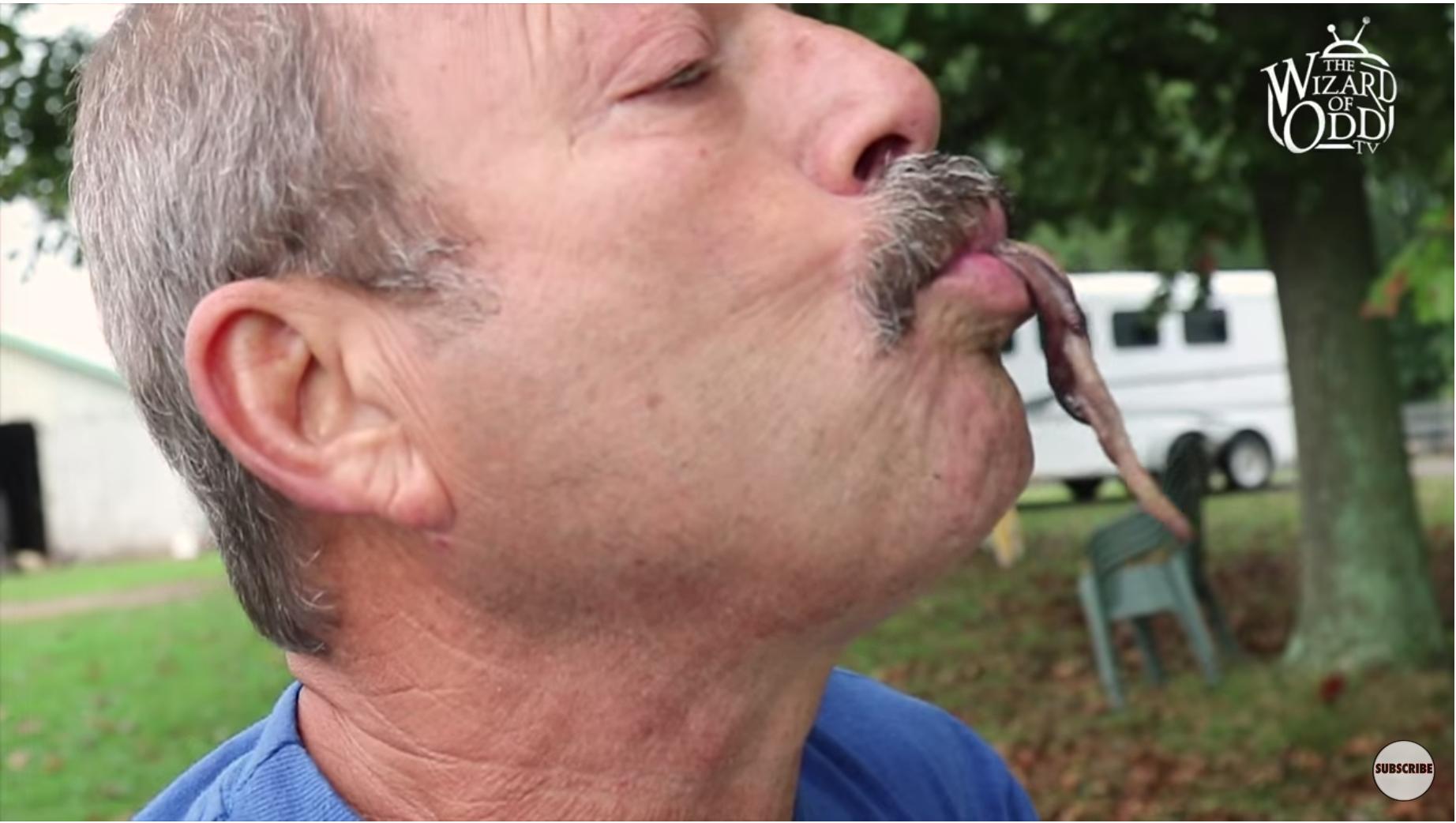 viermii mănâncă un bărbat