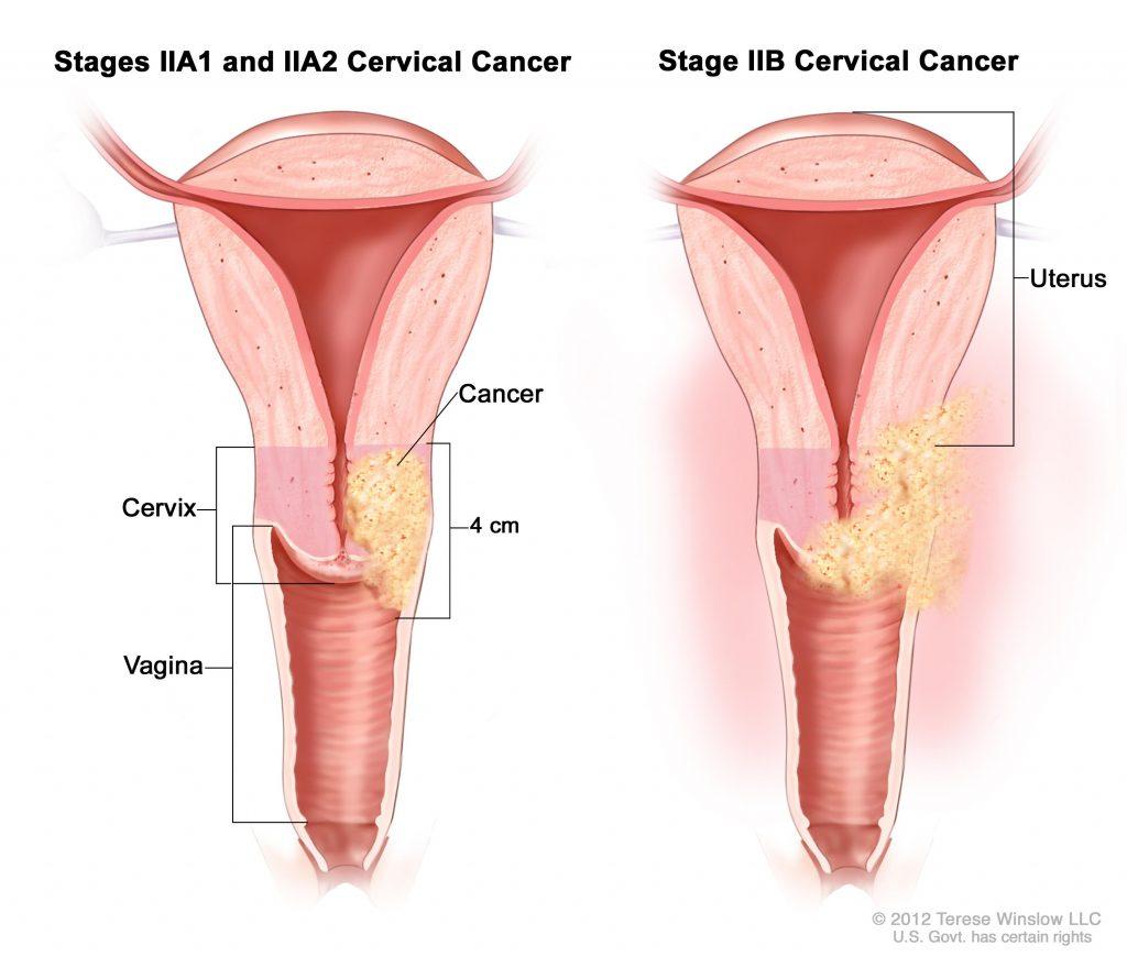 Colposcopia si Biopsia Cervicala - info-tecuci.ro