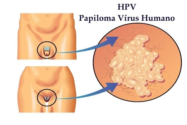 papillomavirus ist