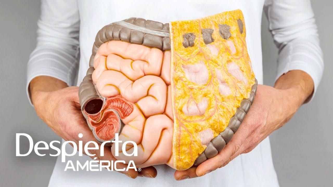 sintomas del cancer de colon hombres
