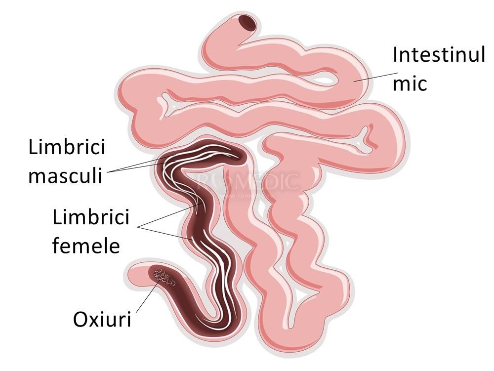 viermi intestinali oxiuri simptome)