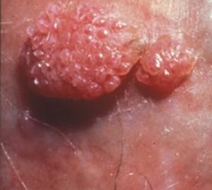 Viermi în vaginul copilului. Infectia cu oxiuri la copii - simptome si tratament