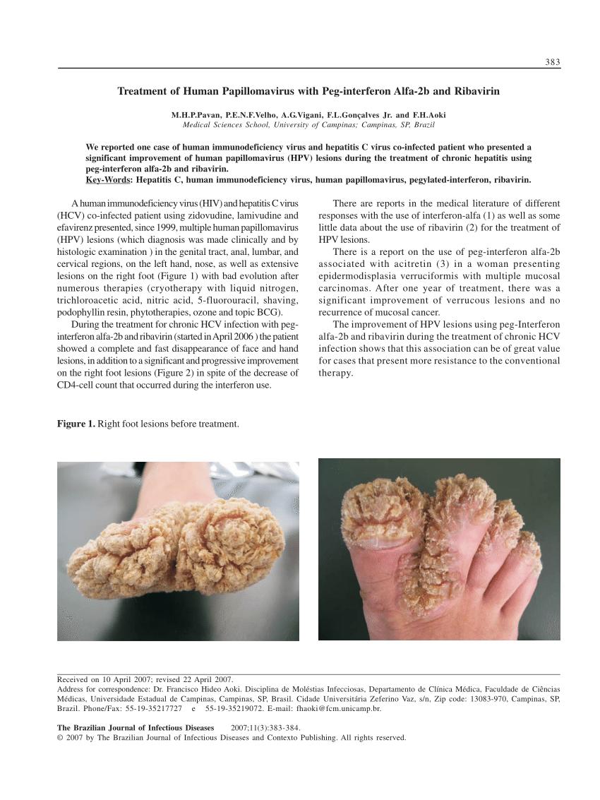 treatment for human papillomavirus hpv)