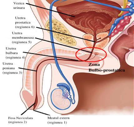 îndepărtarea condilomului pe uretra