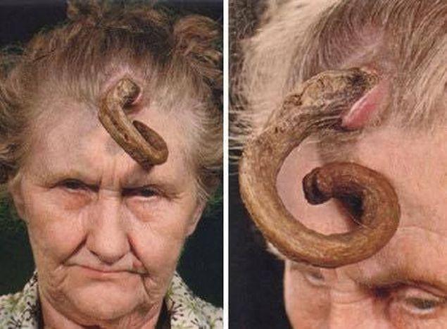 paraziții umani sunt viermi sub piele)