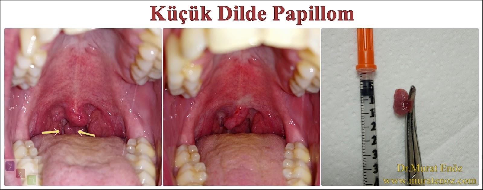 Papilom gingival, Papilomul pe gingie și motivele apariției acestuia în cavitatea bucală