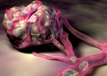 cancerul este malign sau benign