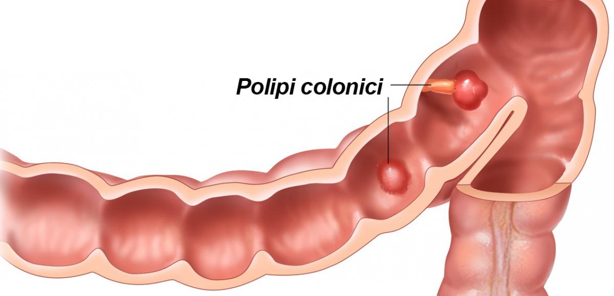 Greşelile din dietă care duc la cancer de colon   info-tecuci.ro