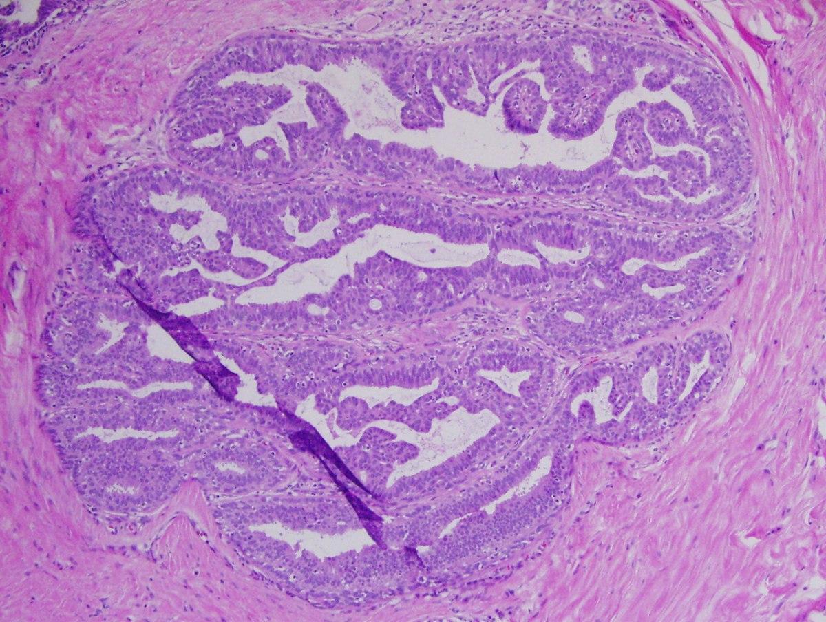 Histopathology of papilloma