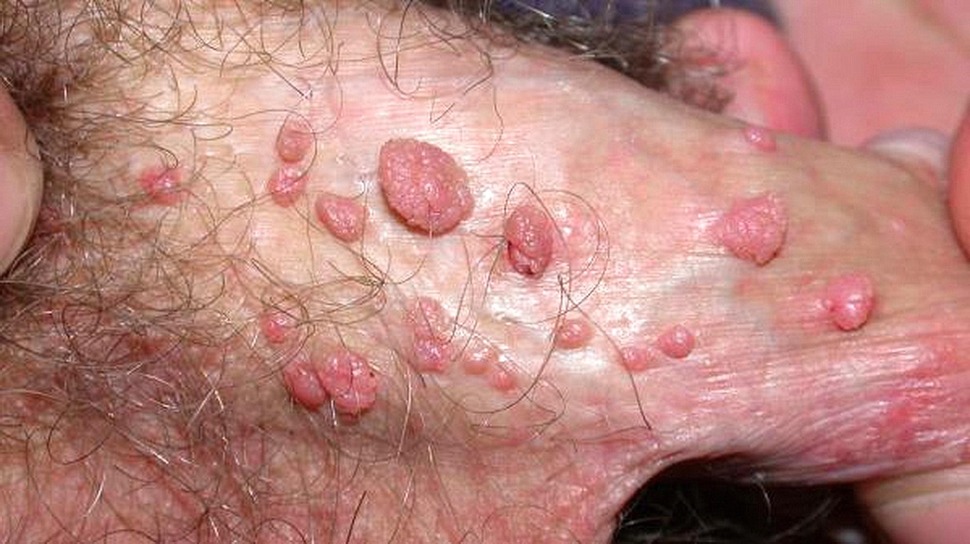 papilloma virus uomo condilomi)