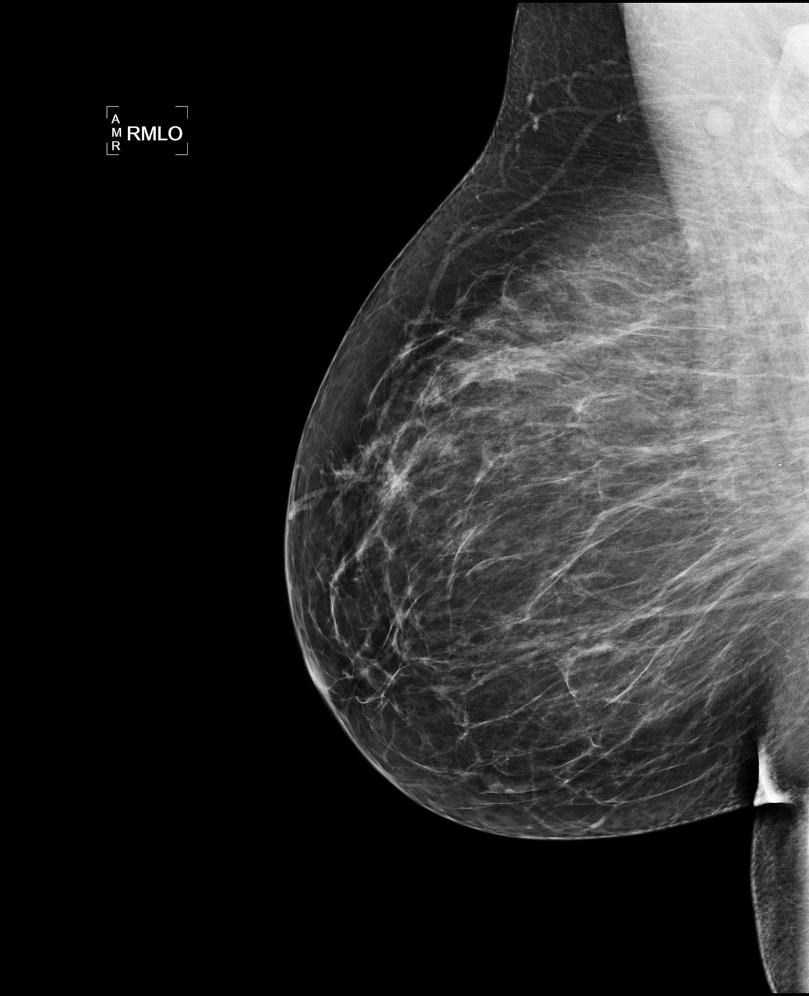 cancerul mamar etiologie