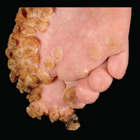 Veruca foot disease - What are Warts? (Verruca Vulgaris) papillon zeugma in der turkei