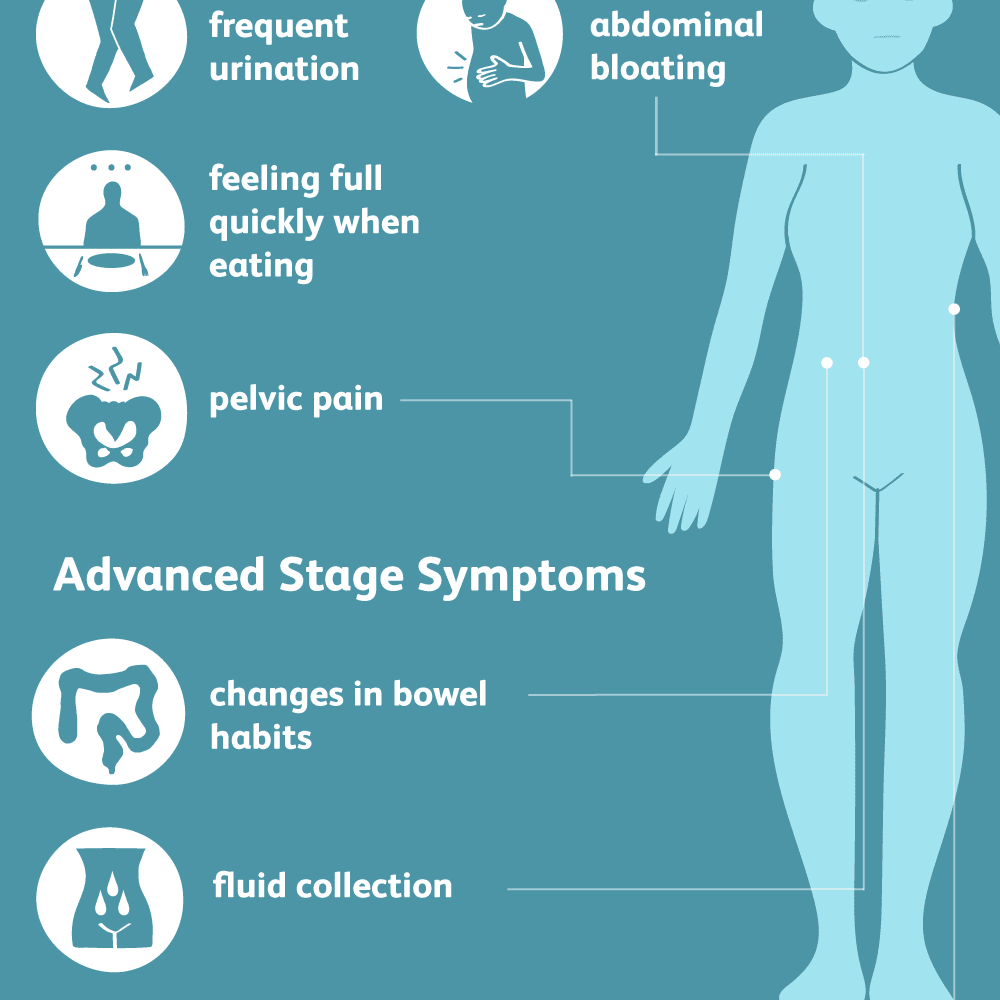 ovarian cancer abdominal bloating