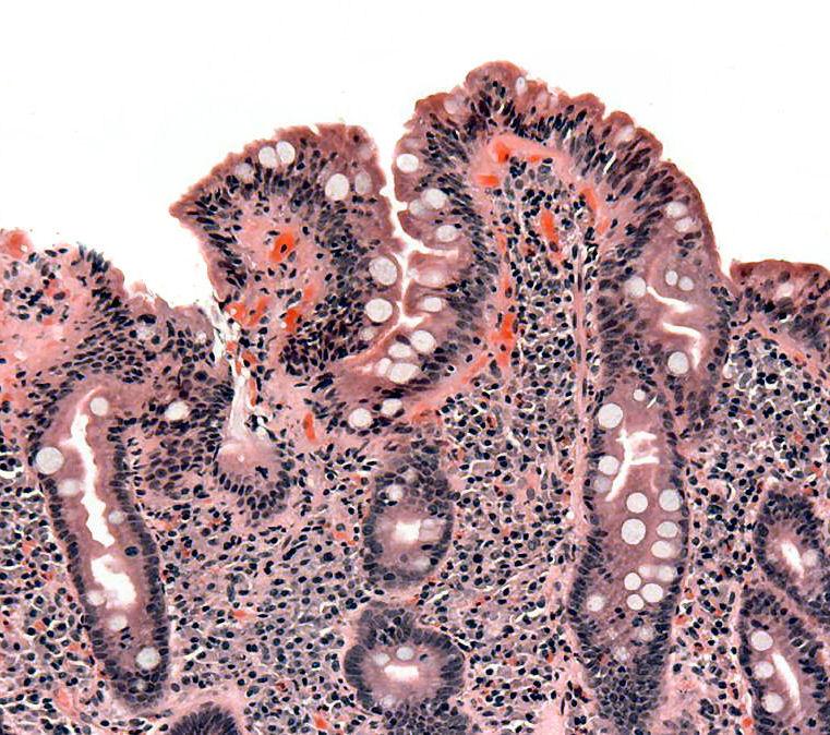 boala celiacă giardia