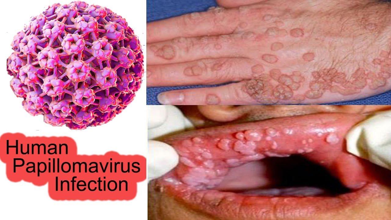 papillomavirus ist)