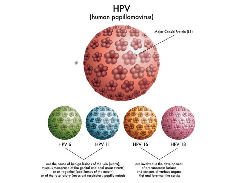 Trattamento papilloma virus. Prostata 32 cu. vedere