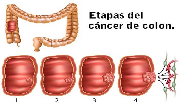 cancer de colon hombres