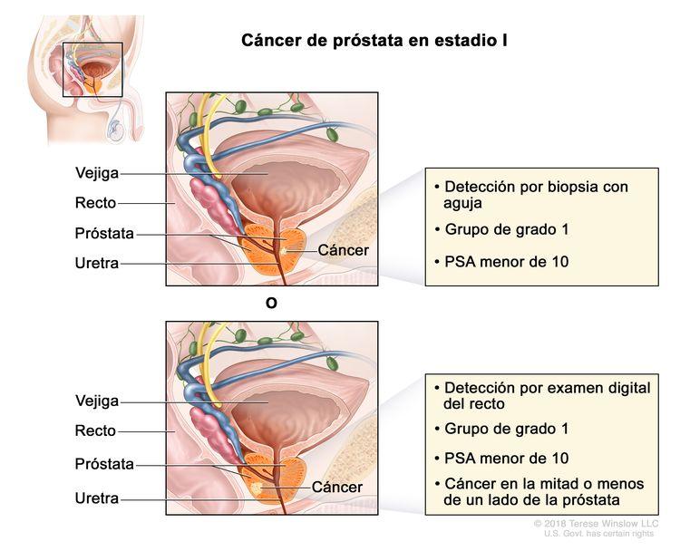 Cancer prostata supervivencia, Specializare acreditate la spiru haret | skogrebas