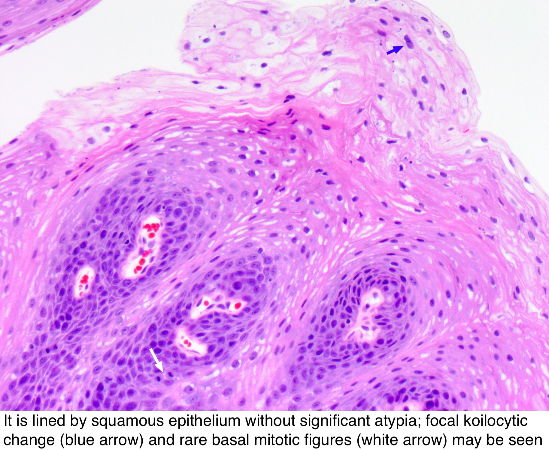 squamous papilloma path outlines)