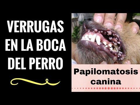 papiloma ductal en boca)