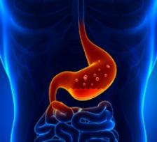 Cancerul gastric – Spitalul Universitar de Urgenţă Militar Central Dr. Carol Davila