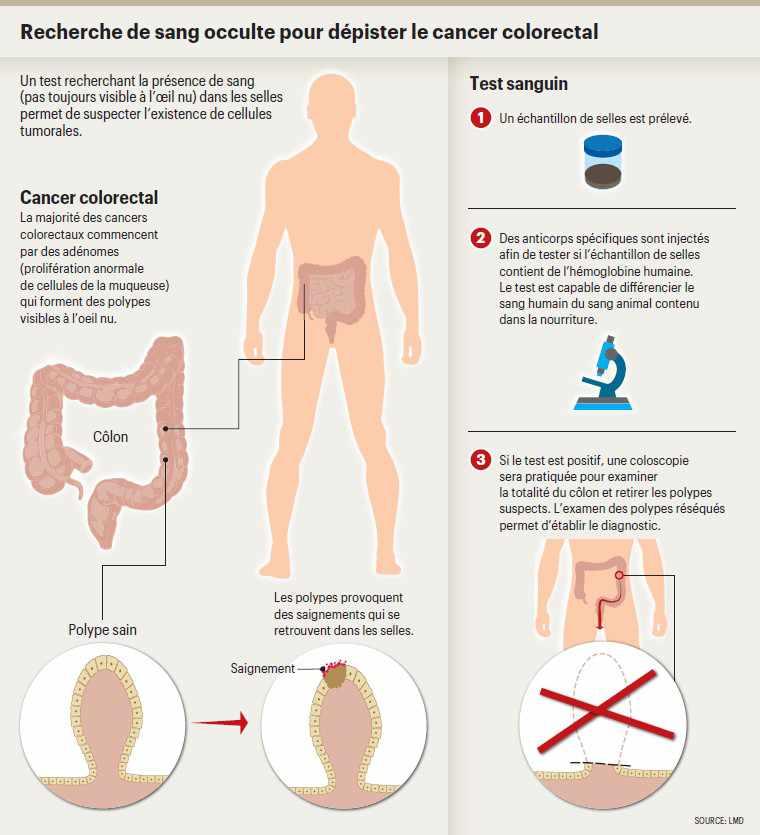 hpv et cancer du colon)