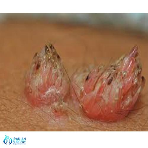 can genital hpv cause cancer cenușii de filum
