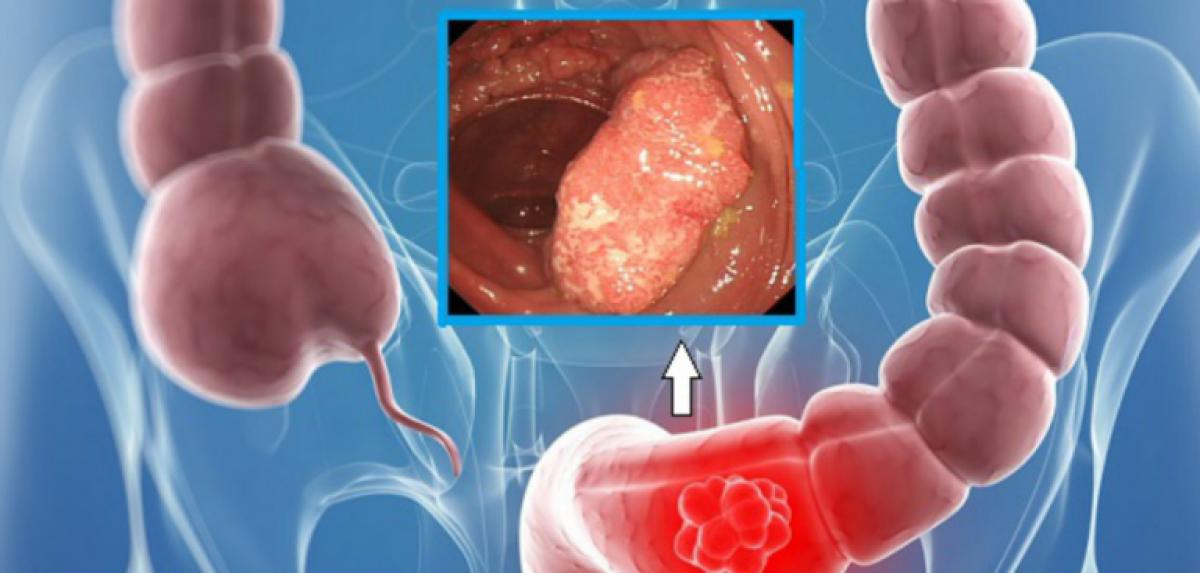 cancer colon sigmoid simptome)