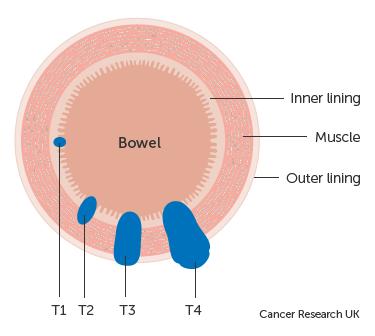 cancer colon t1)