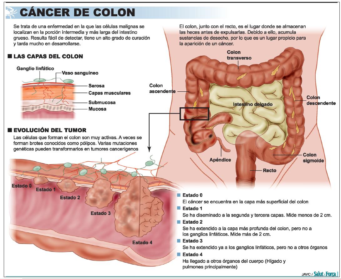 cancer de colon higado)