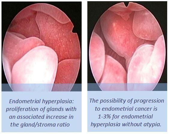 cancer endometrial y embarazo simptomele paraziților protozoici