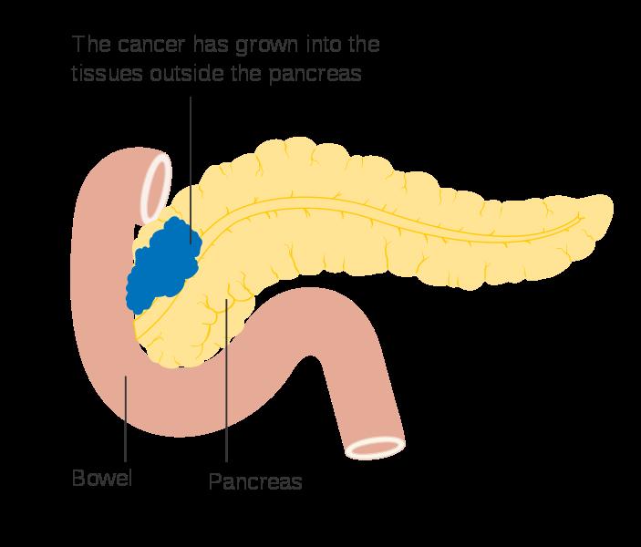cancer neuroendocrino pancreatico)