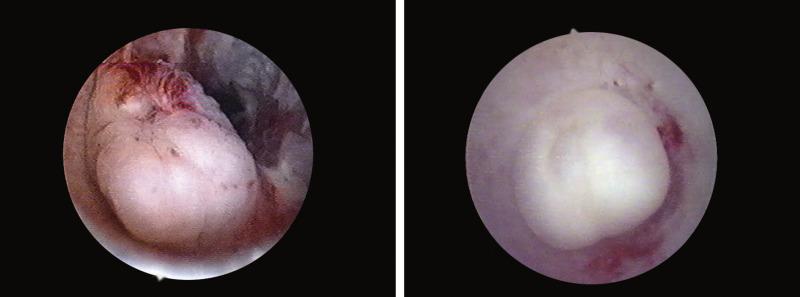 Cancer on tip of urethra, Traducere