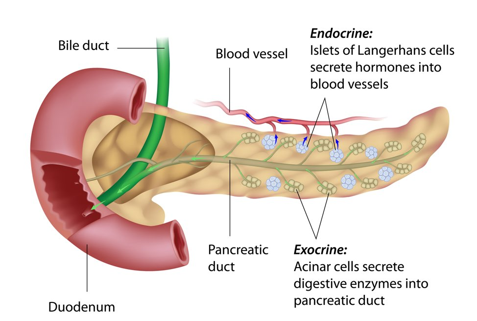 cancer pancreatic neck)