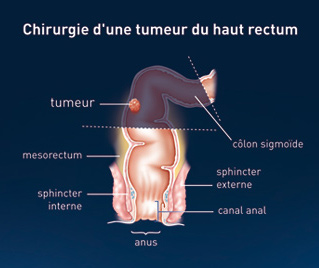 cancer rectal traitement chirurgical)