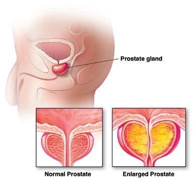 Neoplasmul vezicii urinare (cancer de vezica) - BeHealthy