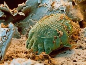 curățarea corpului de bacterii și paraziți