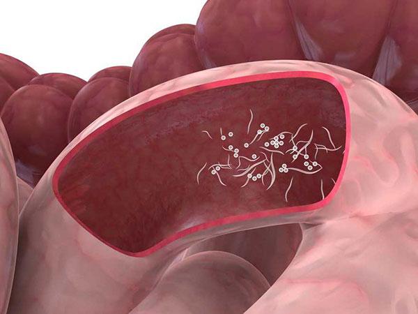 Infeccion por oxiuros ninos. 🔴SERAN PARASITOS VAGINALES ? hpv vaccine ovarian cancer