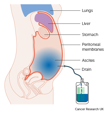 peritoneal cancer of liver