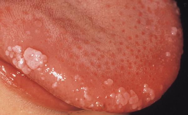 kako lijeciti hpv virus kod muskaraca)