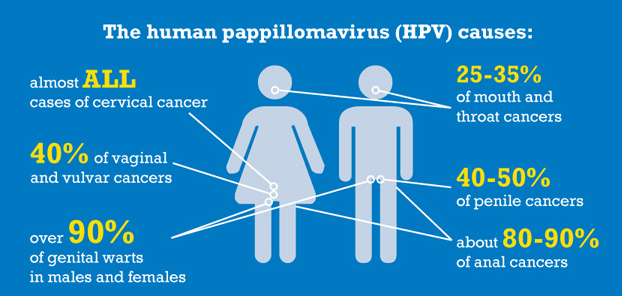 Hpv mannen keel, 21 zile fara hrana history of inverted papilloma icd 10