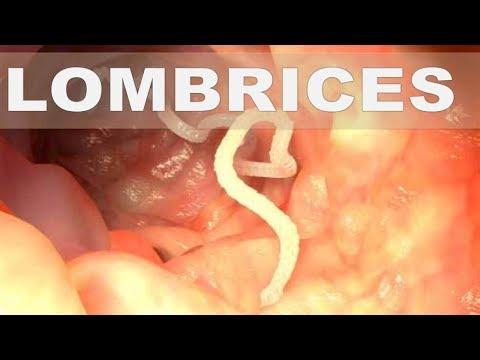 cancer colon benign human papillomavirus infection dormant