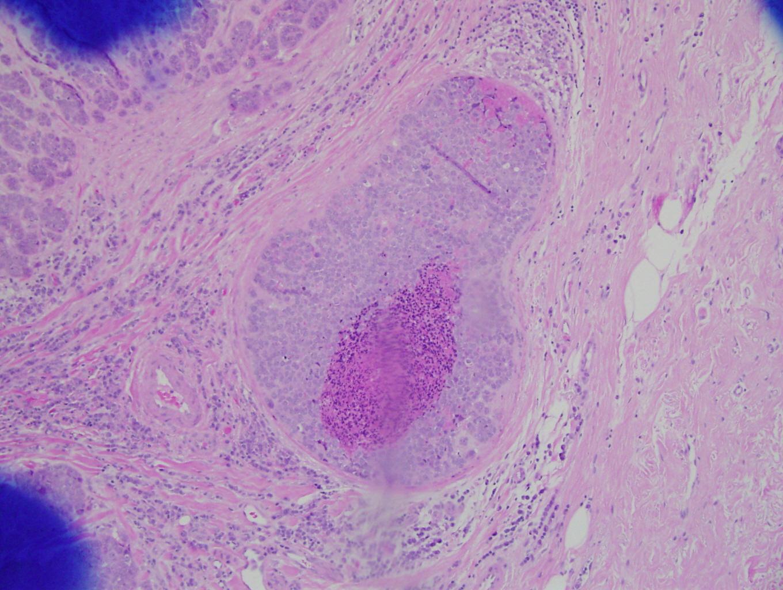 papiloma fibroepitelial histologia)