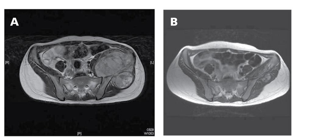 sarcoma cancer pelvic